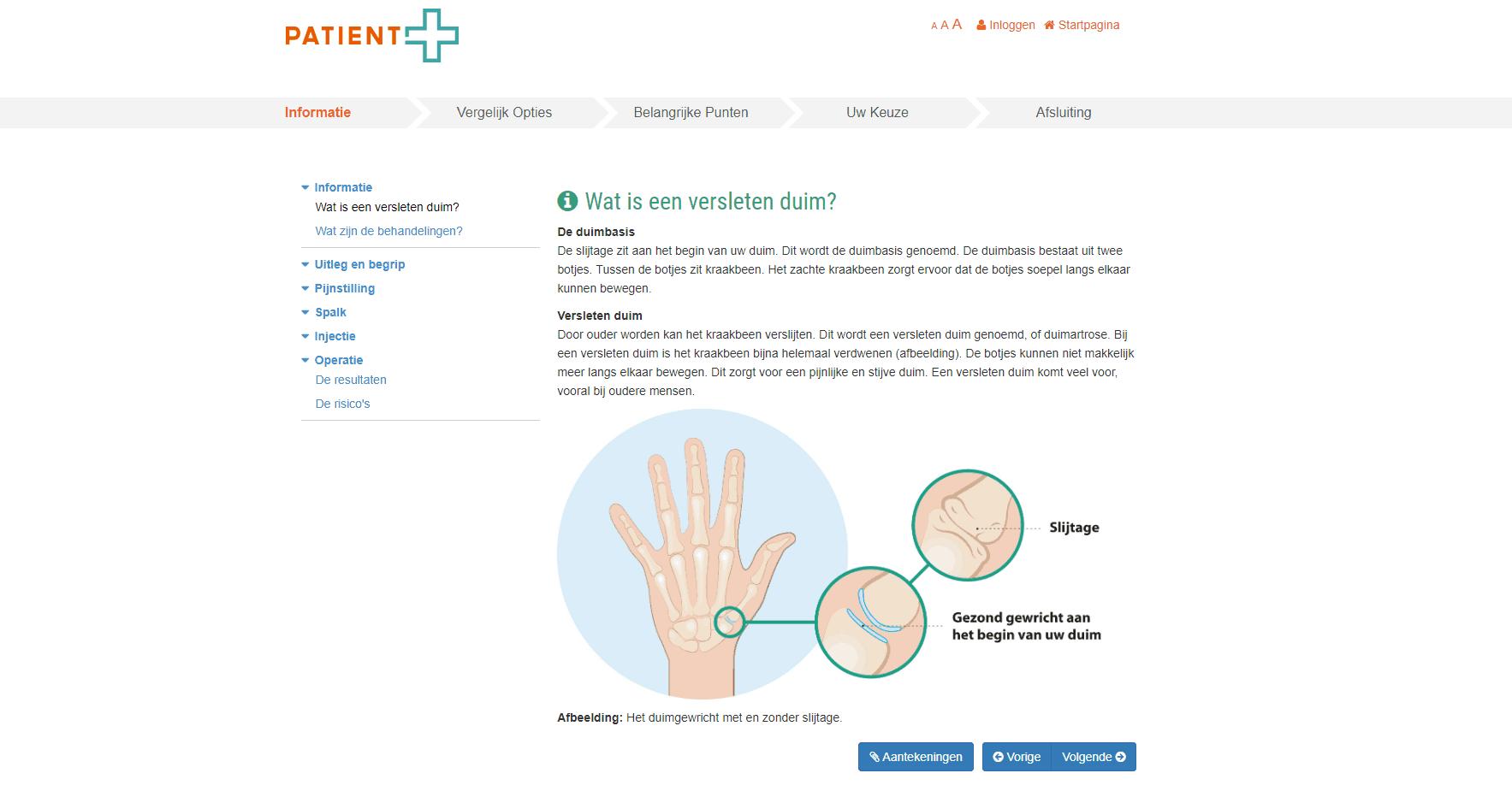 keuzehulp versleten duim duimbasis artrose