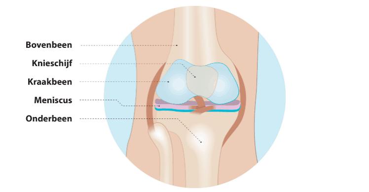 keuzehulp gescheurde meniscus
